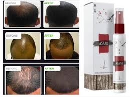 Baldness solution in kenya