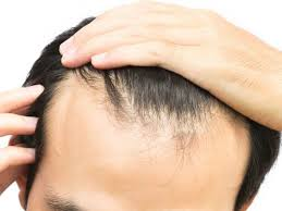 Anti-balding products in nairobi, how to reverse hair loss, anti-baldness hair products Nairobi Kenya