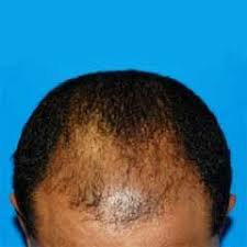 Minoximed Kenya Reviews, Minoximed Product In Kenya Price, Where To Buy Minoximed For Hairloss In Kenya, Anti-baldness Products, Thinning Hair Products Kenya, MinoximedJuba, MinoximedUganda, MinoximedEthiopia, MinoximedSomalia, MinoximedTanzania