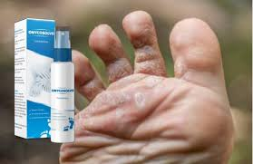 Foot Care, Feet And Nails Care Products, Skin Care Products In Kenya, Toe Nails Care Products, Itching Feet Products