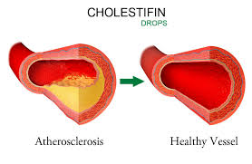 Cholestifin drops cholestifin reviews cholestifin dosage cholestifin benefits cholestifin side effects cholestifin where to buy cholestifin how to take cholestifin ingredientscholestifin cholesterol cholestifin where to buy how to take cholestifin cholestifin where to buy cholestifin side effects cholestifin side effects cholestifin benefits cholestifin ingredients cholestifin dosage cholestifin how to take cholestifin price in Kenya cholestifin review cholestifin Philippines cholestifin drops cholestigin drops protect your hear cholestifinjumia cholestifin reduces cholesterol cholestifin drops for normalizing cholesterol levels cholestfin natural way of reducing cholesterol cholestifin drops reviews cholestifin price where to buy cholestifin in Kenya cholestifin contracts in Nairobi Kenya chlestifin official site cholestifin official website cholestifinLLC cholestifin official contacts cholestifin Nairobi Kenya+254723408602