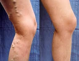 Varicose Veins Removal Products, Best Varicose Veins Removal Creams, Anti-Varicose Veins Products, Jumia Kenya Anti Varicose Spider Veins Cream For Treatment & Prophylaxis